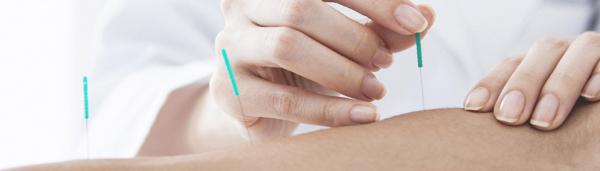 kursus i advanced dry needling