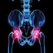 Kursus i hofteskader